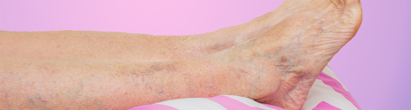 Varicose Veins in leg and foot